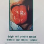 Picture of a bright red crimson tongue without coat (mirror tongue), symptom of severe internal heat damaging the Yin, Yin deficiency