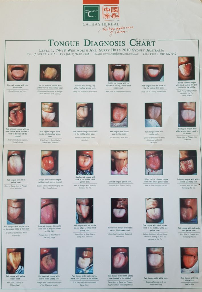 Tongue chart with photos showing how the tongue looks for various conditions.