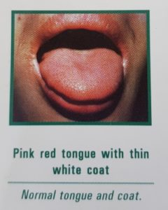 Picture of a normal tongue from acupuncturist's chart : pink red tongue with thin white coat