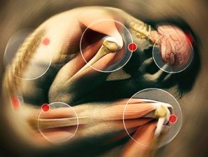 Image of the differents possible parts of the body toutched by chronic pain