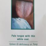 Picture of a pale tongue with thin white coat, symptom of spleen Qi deficiency or Yang deficiency with cold retention