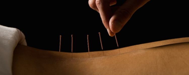 acupuncture can cure backache